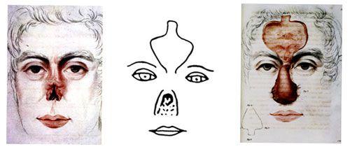 Plastics-_Facial_recon-_history-_P2_500_213_80_c1